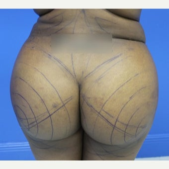 18-24 year old woman treated with Brazilian Butt Lift after 1790639