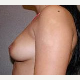 35-44 year old woman treated with Breast Implants before 3108577