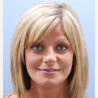 35-44 year old woman treated with Facelift after 3590231