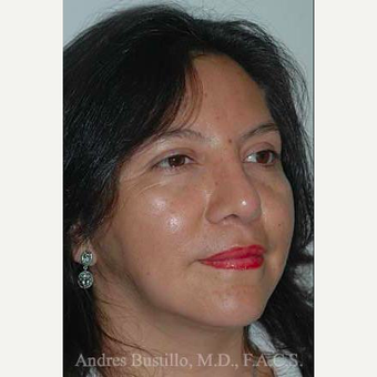 43 year old woman treated with Revision Rhinoplasty after 3460786