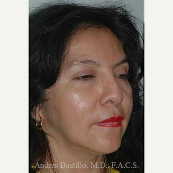 43 year old woman treated with Revision Rhinoplasty before 3460786