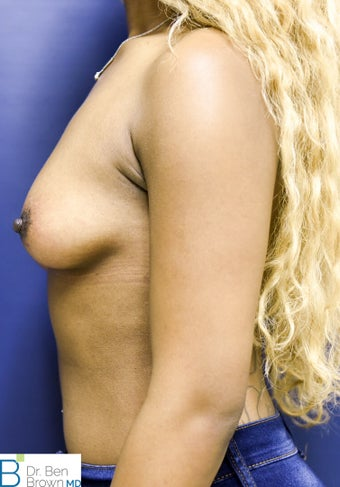 25-34 year old woman treated with Breast Augmentation 2698833