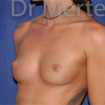 18-24 year old woman treated with Breast Augmentation before 3551992