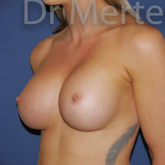 18-24 year old woman treated with Breast Augmentation after 3551992