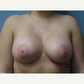 25-34 year old woman treated with Breast Augmentation after 3538565