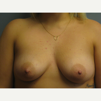 25-34 year old woman treated with Breast Augmentation before 3538565