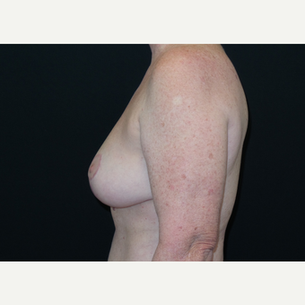 45-54 year old woman treated with Breast Lift after 3306017
