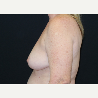 45-54 year old woman treated with Breast Lift before 3306017