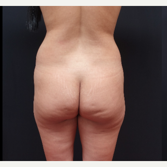 25-34 year old woman treated with Fat Transfer before 3267077