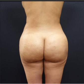 25-34 year old woman treated with Fat Transfer after 3267077