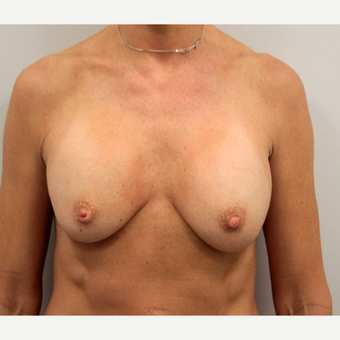 35-44 year old woman treated with Breast Implant Revision before 3206831