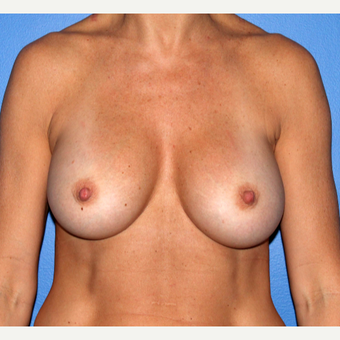 35-44 year old woman treated with Breast Implant Revision after 3206831