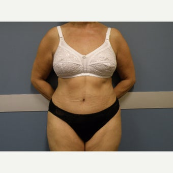 Tummy tuck after 1849968
