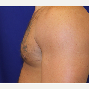 25-34 year old man treated with Male Breast Reduction after 3306468
