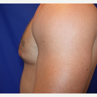 25-34 year old man treated with Male Breast Reduction before 3306468