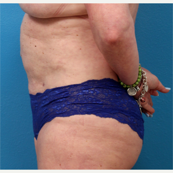 55-64 year old woman treated with Liposuction after 3340151
