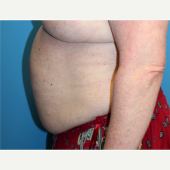 55-64 year old woman treated with Liposuction before 3340151