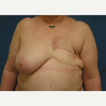 45-54 year old woman treated with Breast Reconstruction before 3434928