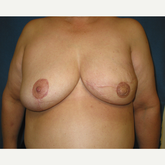 45-54 year old woman treated with Breast Reconstruction after 3434928