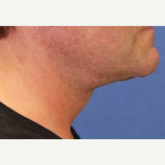 56 year old man with an open neck lift after 3055111