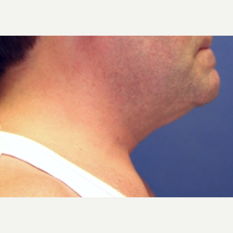 56 year old man with an open neck lift before 3055111