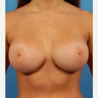 25-34 year old woman treated with Breast Augmentation after 3786949