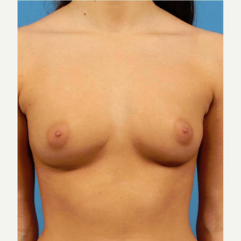 25-34 year old woman treated with Breast Augmentation before 3786949