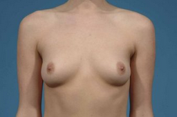 Breast Augmentation before 132009