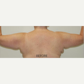 45-54 year old woman treated with Arm Lift before 3589204