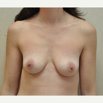 35-44 year old woman treated with Breast Reconstruction before 3127775