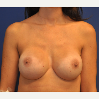 35-44 year old woman treated with Breast Reconstruction after 3127775