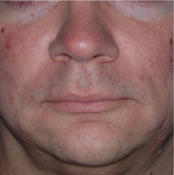 35 Year Old Male Treated for Jawline Contouring before 1367252