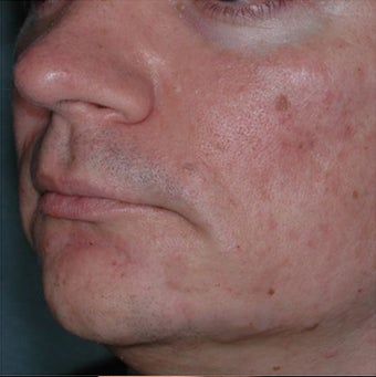35 Year Old Male Treated for Jawline Contouring 1367252