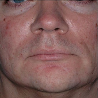 35 Year Old Male Treated for Jawline Contouring after 1367252