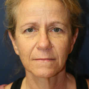 45-54 year old woman treated with Neck Lift and Face Lift and Brow Lift and Eyelid Rejuvenation before 3555322