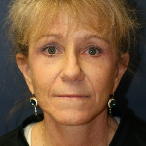 45-54 year old woman treated with Neck Lift and Face Lift and Brow Lift and Eyelid Rejuvenation after 3555322