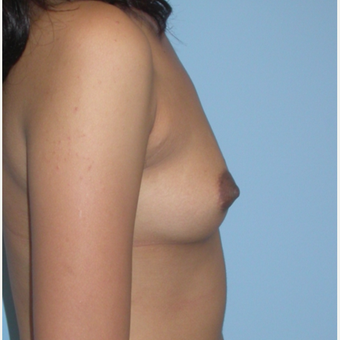 24 year old woman.  Saline breast implants.  300 cc mod profile filled to 325 cc.  A to small C cup. before 3294406
