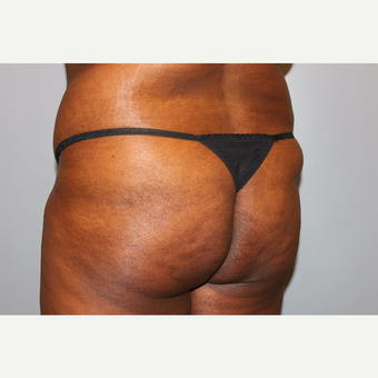 35-44 year old woman treated with Brazilian Butt Lift before 3565917