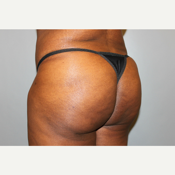 35-44 year old woman treated with Brazilian Butt Lift after 3565917