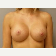 25-34 year old woman treated with Breast Implants after 3108573