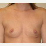 25-34 year old woman treated with Breast Implants before 3108573