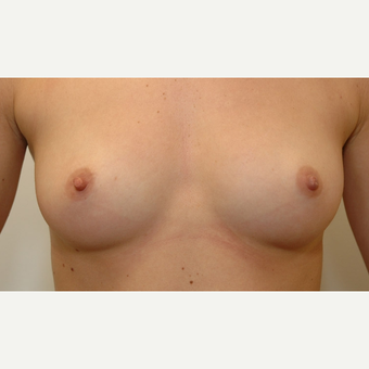 Breast Augmentation before 3108874