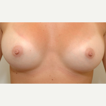 Breast Augmentation after 3108874