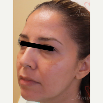 35-44 year old woman treated with Bellafill before 3670688
