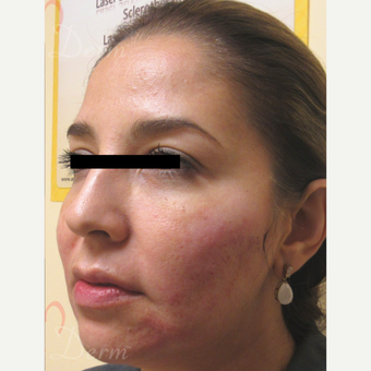 35-44 year old woman treated with Bellafill after 3670688
