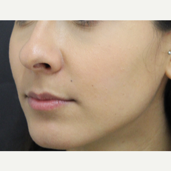 18-24 year old woman treated with Lip Augmentation before 3673438