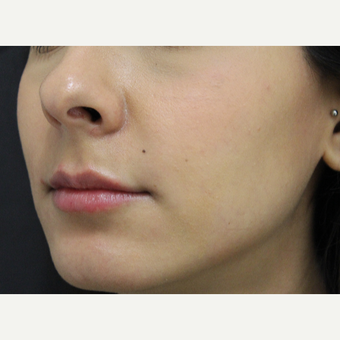18-24 year old woman treated with Lip Augmentation after 3673438