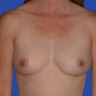 36 year old woman treated with Saline Breast Implants before 3833216
