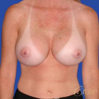 36 year old woman treated with Saline Breast Implants after 3833216