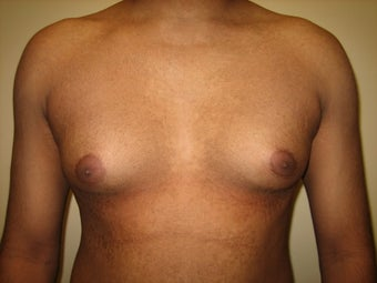 25 year old male treated for gynecomastia